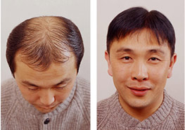 Hair implant Exoderm